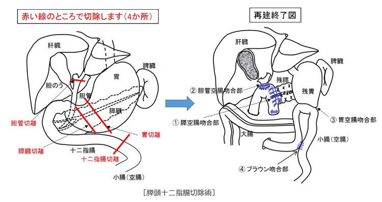 看護 腹腔 胆嚢 摘出 術 鏡 下