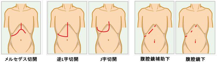 嚢胞 手術 肝